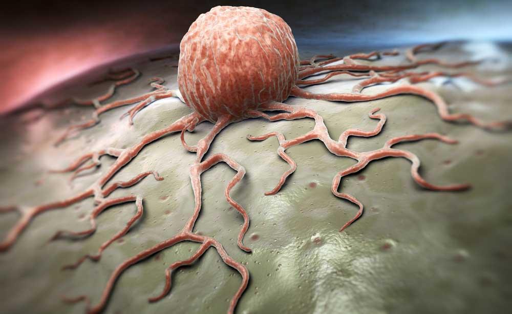pdta tumore prostata sicilia