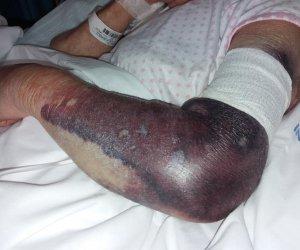 https://www.tp24.it/immagini_articoli/02-08-2019/1564723092-0-denuncia-state-attenti-quellinfermiere-dellospedale-trapani-ecco.jpg