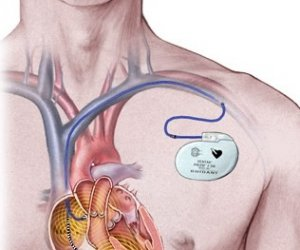 https://www.tp24.it/immagini_articoli/06-08-2017/1502035924-0-portatori-pacemaker-possiamo-essere-assistiti-allospedale-mazara.jpg