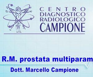 https://www.tp24.it/immagini_articoli/08-07-2019/1562582054-0-prostata-multiparametrica-ascoltiamo-dott-marcello-campione.jpg