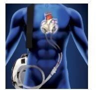 https://www.tp24.it/immagini_articoli/08-10-2018/1538975638-0-cuore-artificiale.jpg