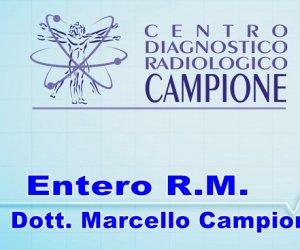 https://www.tp24.it/immagini_articoli/10-06-2019/1560157711-0-entero-ascoltiamo-dott-marcello-campione.jpg