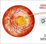 https://www.tp24.it/immagini_articoli/14-09-2013/1379491771-1-degenerazione-maculare-senile-scoperto-meccanismo.jpg