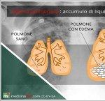 https://www.tp24.it/immagini_articoli/15-09-2013/1379491771-1-edema-polmonare.jpg