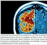 https://www.tp24.it/immagini_articoli/16-09-2013/1379491772-1-rame-identificato-come-colpevole-nel-morbo-di-alzheimer.jpg